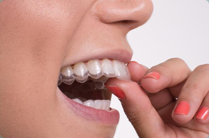 Aparelhos transparentes sendo colocados nos dentes.